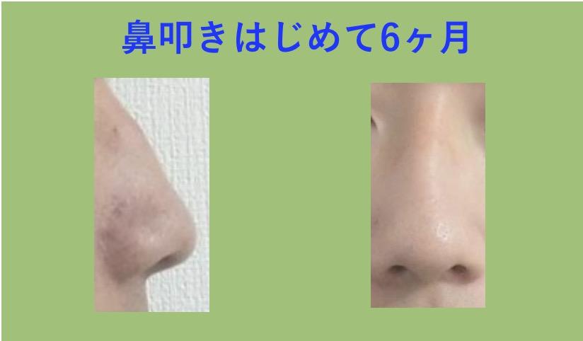 鼻たたきの効果(半年)