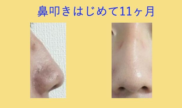 鼻叩きをはじめてから11ヶ月目の変化
